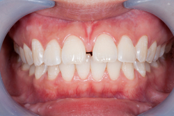 Frenectomy surgery performed at Aesthetic Periodontal & Implant Specialists